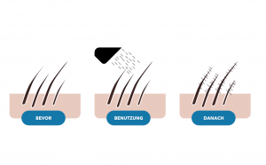 Streuhaar für dünnes Haar